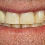 Kaj je granulomsko periapikalno vnetje?