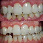 Zobobol je najpogostejša bolečina v ustni votlini